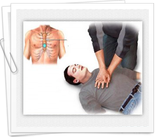 Unnecessary mouth-to-mouth procedure during CPR