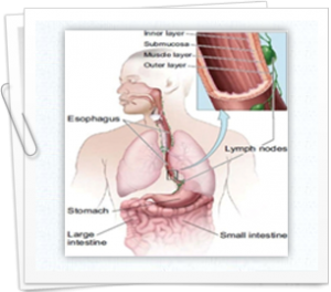 Factors that increase risk for esophageal cancer