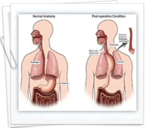 Re-evaluation of esophageal cancer treatments