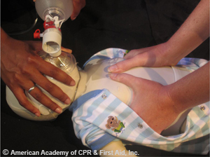 Two rescuers compression around the chest on infant